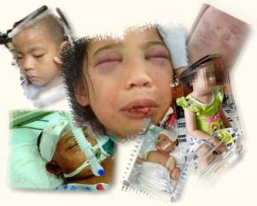 Những hình ảnh đau lòng do nạn bạo hành trẻ em gây ra